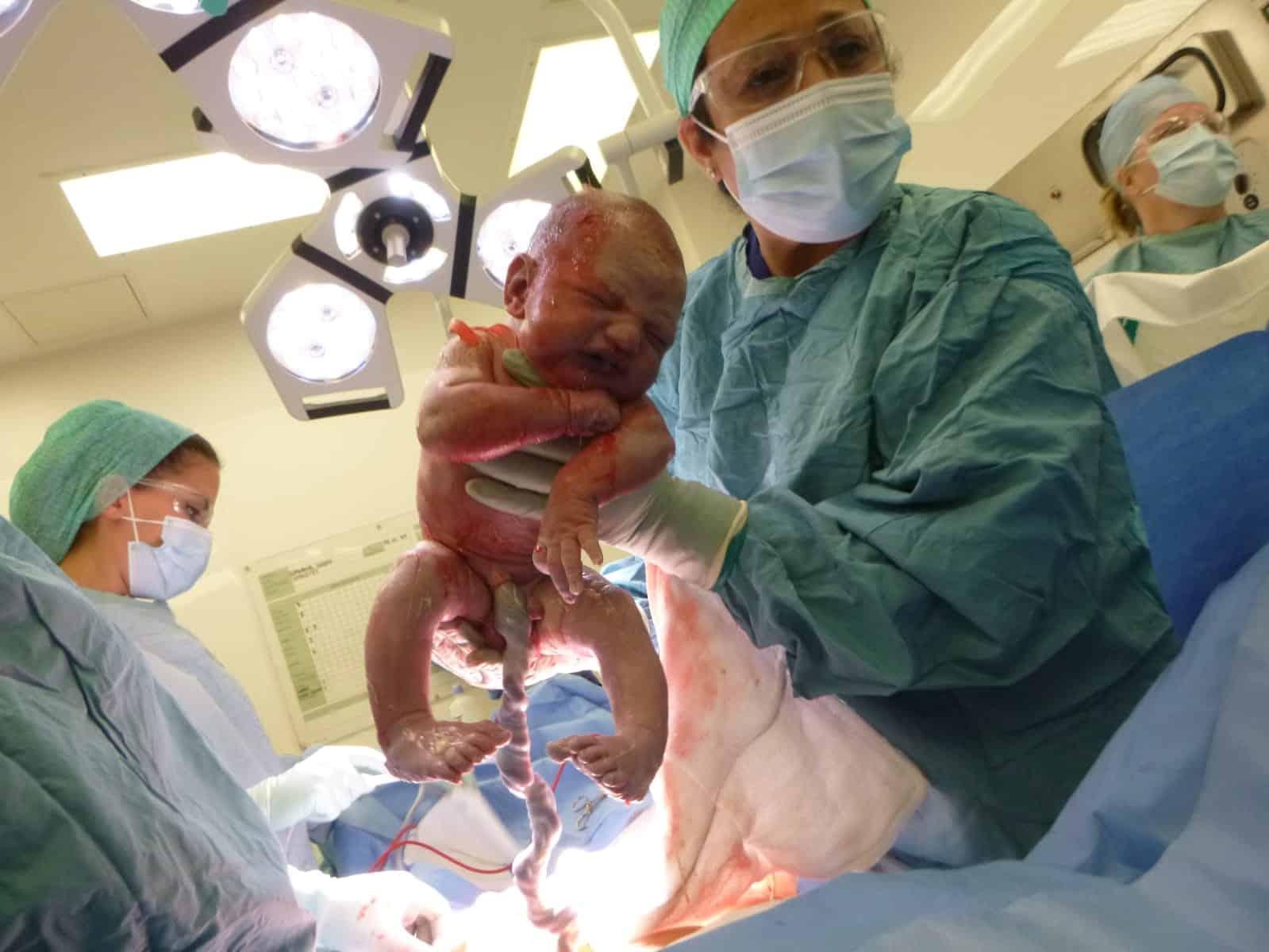 cesarean birth baby being born